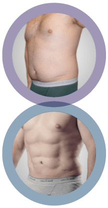 liposuction before and after image