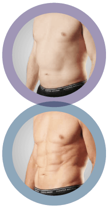 smartlipo before and after image