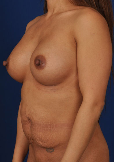 Tummy Tuck Before & After Patient #240
