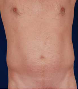 Torso Liposuction Before & After Patient #292