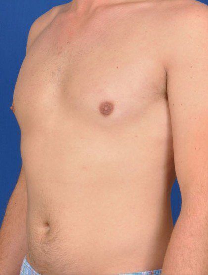 Chest Liposuction Before & After Patient #312
