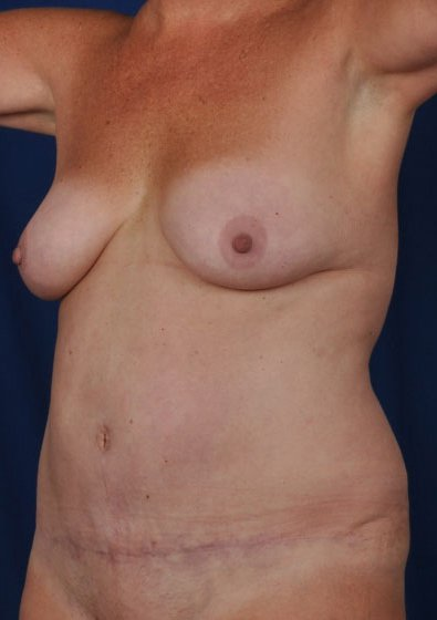Torso Liposuction Before & After Patient #237