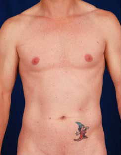 Torso Liposuction Before & After Patient #289