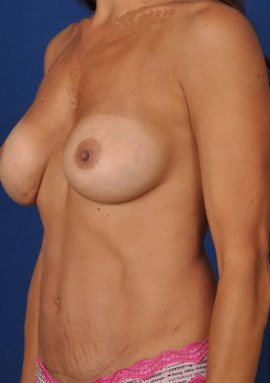 Torso Liposuction Before & After Patient #234