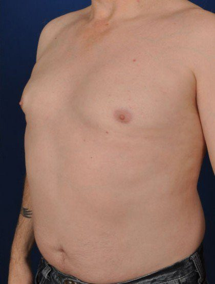 Chest Liposuction Before & After Patient #309