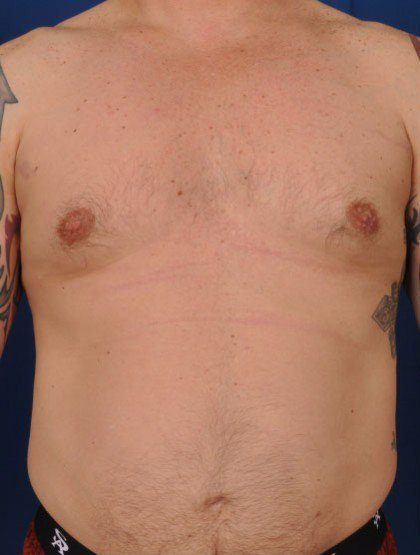 Chest Liposuction Before & After Patient #306