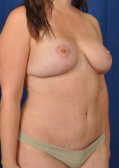 Torso Liposuction Before & After Patient #229