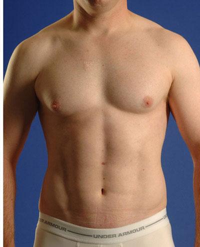 Torso Liposuction Before & After Patient #284
