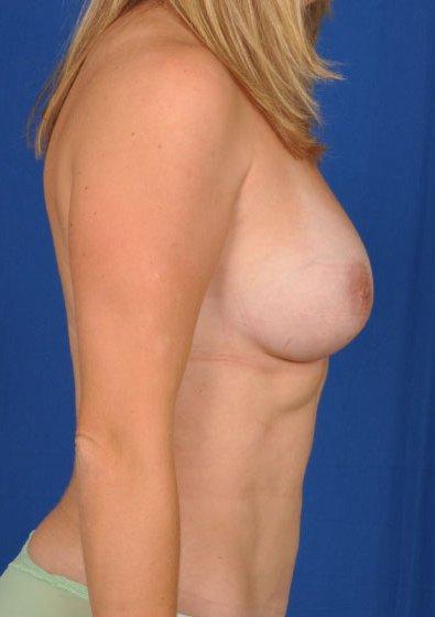 Torso Liposuction Before & After Patient #224