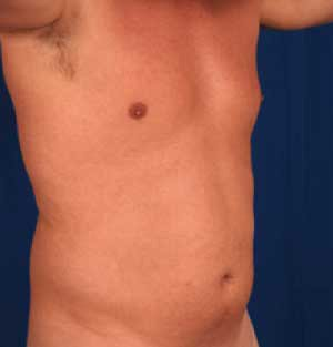 Torso Liposuction Before & After Patient #272