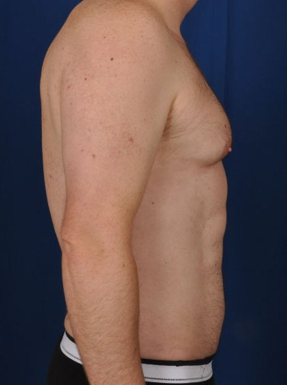Torso Liposuction Before & After Patient #265