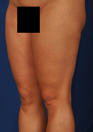 Legs Liposuction Before & After Patient #213
