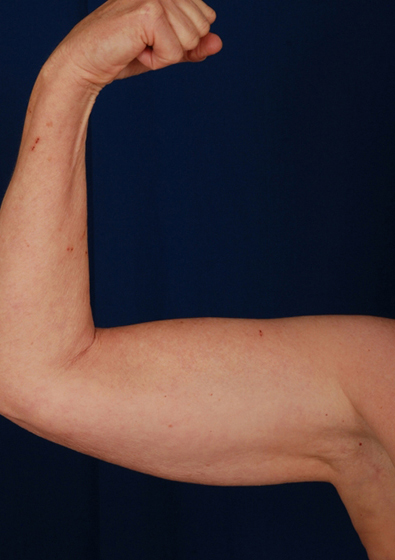 Arms Liposuction Before & After Patient #207