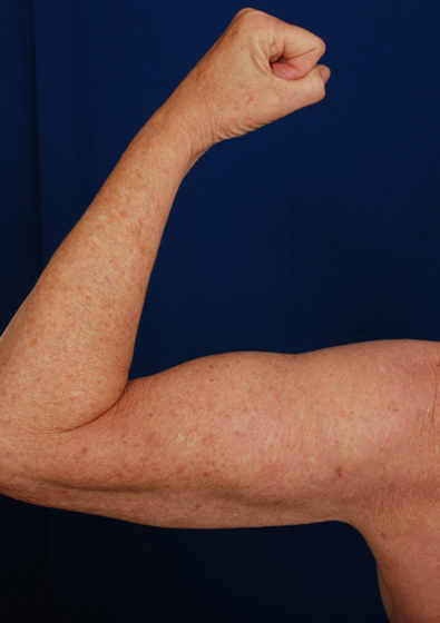 Arms Liposuction Before & After Patient #202