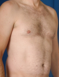 Torso Liposuction Before & After Patient #260