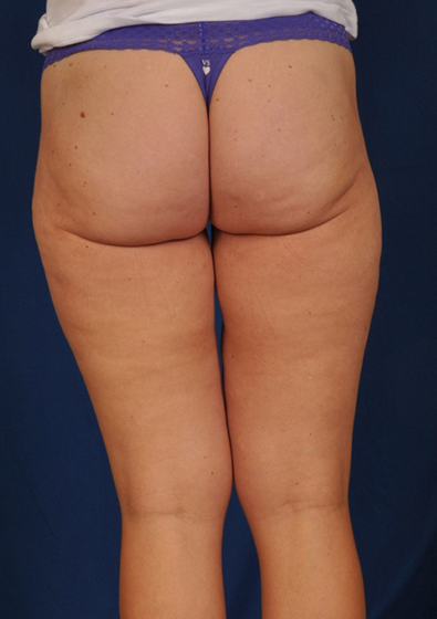 Legs Liposuction Before & After Patient #191