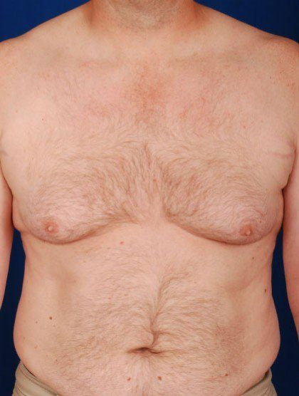 Torso Liposuction Before & After Patient #255