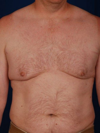 Chest Liposuction Before & After Patient #323