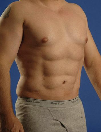 Torso Liposuction Before & After Patient #301