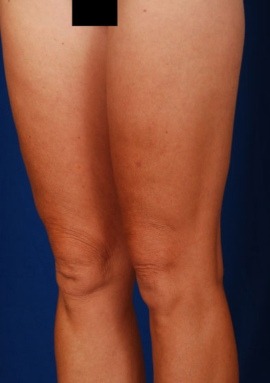 Legs Liposuction Before & After Patient #184