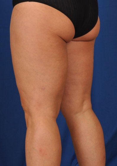 Legs Liposuction Before & After Patient #84