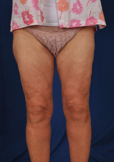 Legs Liposuction Before & After Patient #179