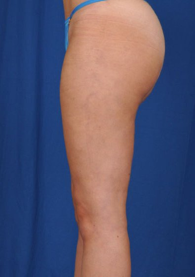 Legs Liposuction Before & After Patient #174