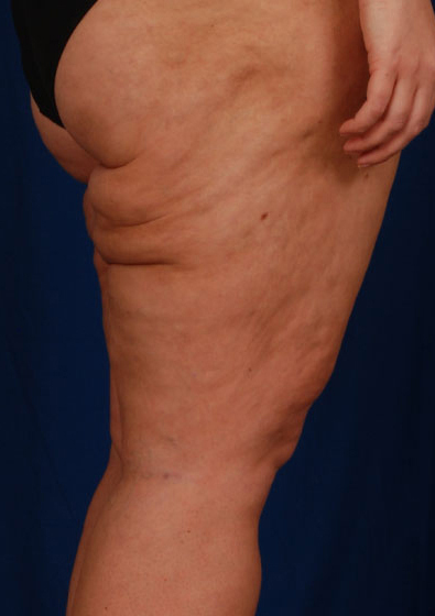 Legs Liposuction Before & After Patient #162