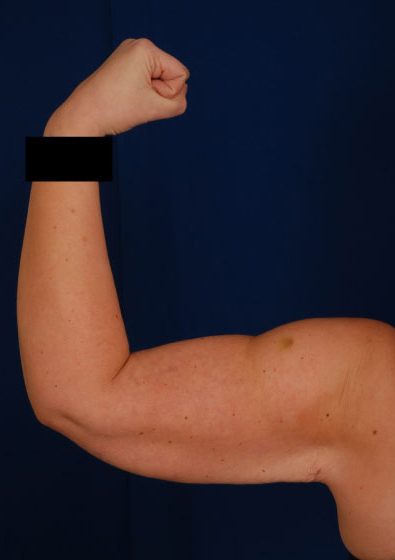 Arms Liposuction Before & After Patient #154