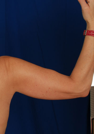 Arms Liposuction Before & After Patient #157