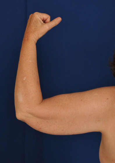 Arms Liposuction Before & After Patient #91