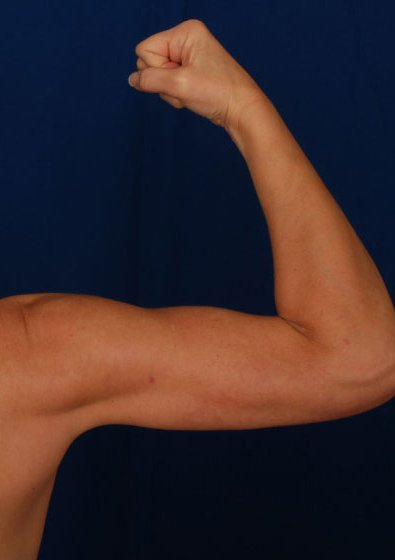 Arms Liposuction Before & After Patient #96