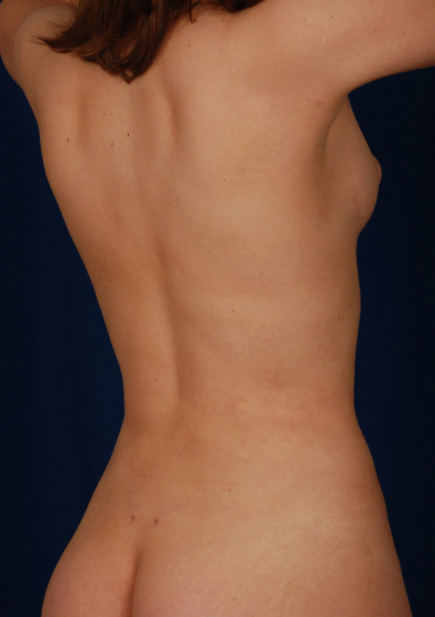 Torso Liposuction Before & After Patient #144