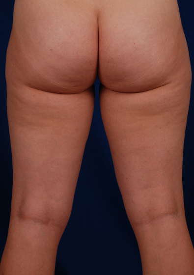 Legs Liposuction Before & After Patient #112