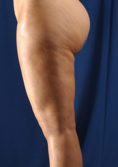 Legs Liposuction Before & After Patient #109