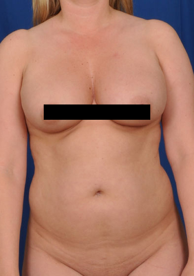 Torso Liposuction Before & After Patient #133