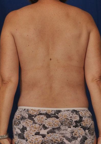 Torso Liposuction Before & After Patient #124