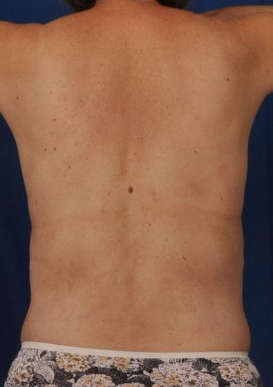Torso Liposuction Before & After Patient #124