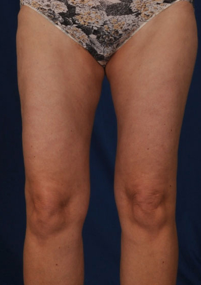 Legs Liposuction Before & After Patient #121