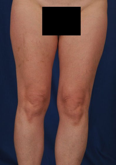 Legs Liposuction Before & After Patient #102