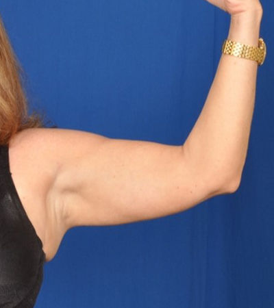 Arms Liposuction Before & After Patient #511