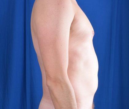 Torso Liposuction Before & After Patient #538