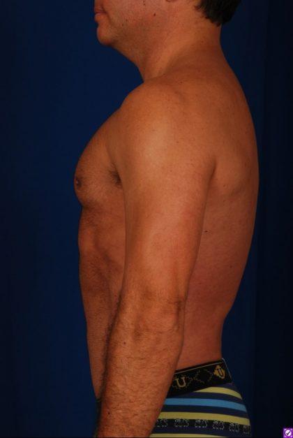 Torso Liposuction Before & After Patient #528