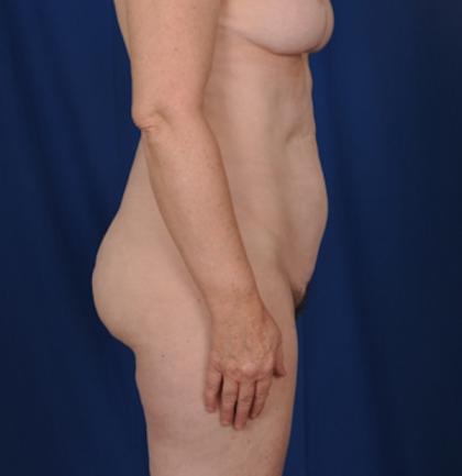 Torso Liposuction Before & After Patient #720