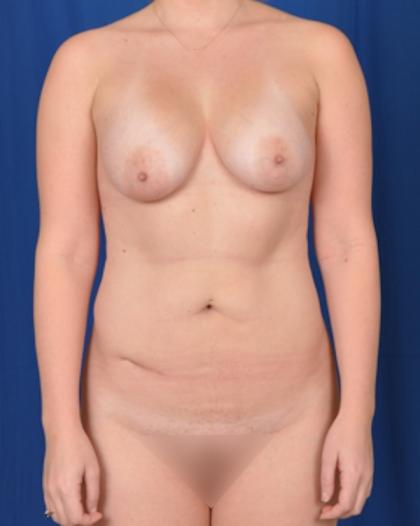 Torso Liposuction Before & After Patient #740