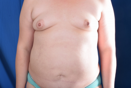 Torso Liposuction Before & After Patient #754