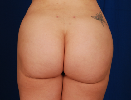 Fat Transfer to Buttocks Before & After Patient #786
