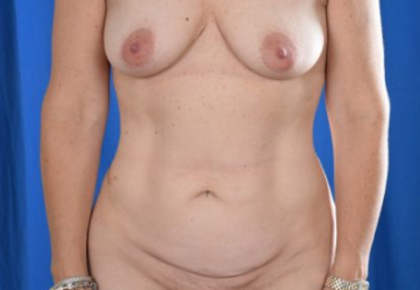 Tummy Tuck Before & After Patient #812