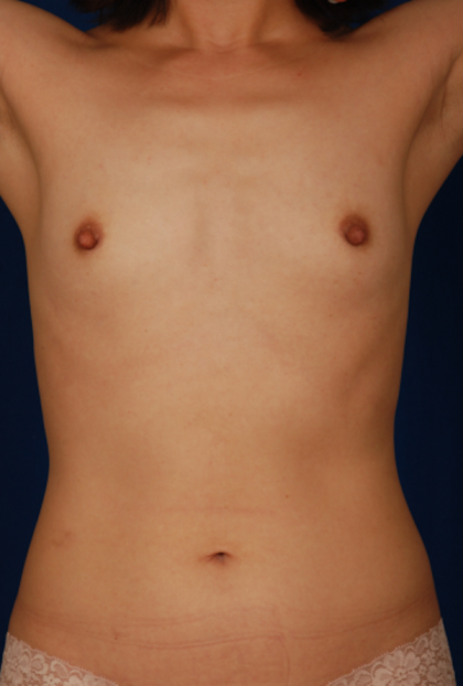 Patient #890 Torso Liposuction Before and After Photos