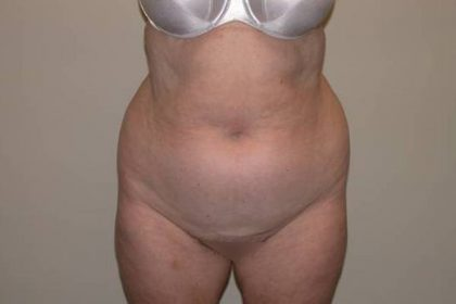 Torso Liposuction Before & After Patient #896